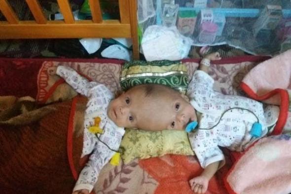 نقل توأم سیامي يمني للعلاج في السعودية