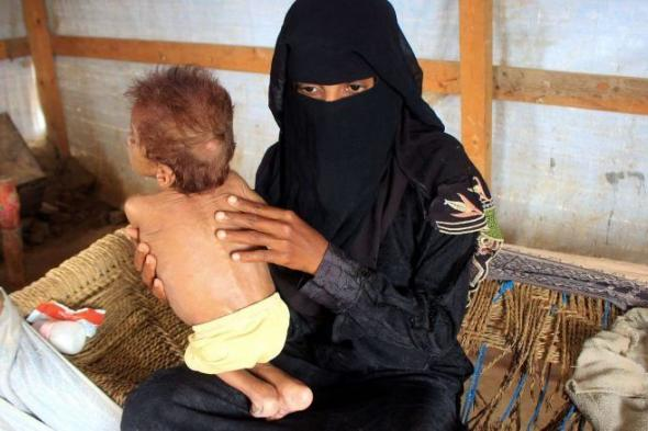 الغارديان: 5 ملايين على شفا المجاعة.. و16 مليونا آخرين مهددون