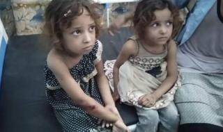 جريمة جديدة: استشهاد وإصابة 4 أطفال إثر قصف المليشيات الحوثية على مدينةحَيْس في الحديدة